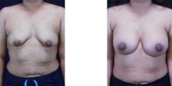 Silicone Breast Augmentation with Lift *