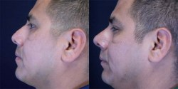Rhinoplasty - Functional *
