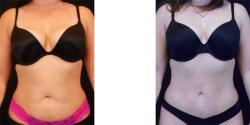 Liposuction - Abdomen & Flanks*