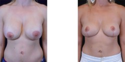Breast Implant Removal with Lift *