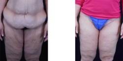 Thighplasty *