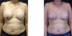 Breast Reconstruction - Direct to Implant *