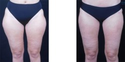Liposuction - Thighs *