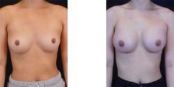 Silicone Breast Augmentation *
