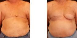 Breast Reconstruction - Lat Flap *