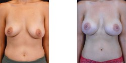 Abdominoplasty - Mini *
