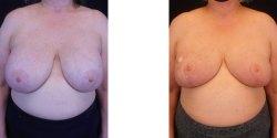 Breast Lift *