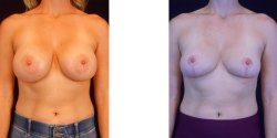 Breast Implant Removal and Lift *