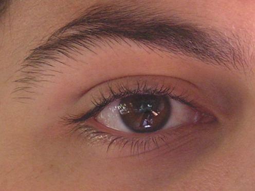 Eye Lid Surgery