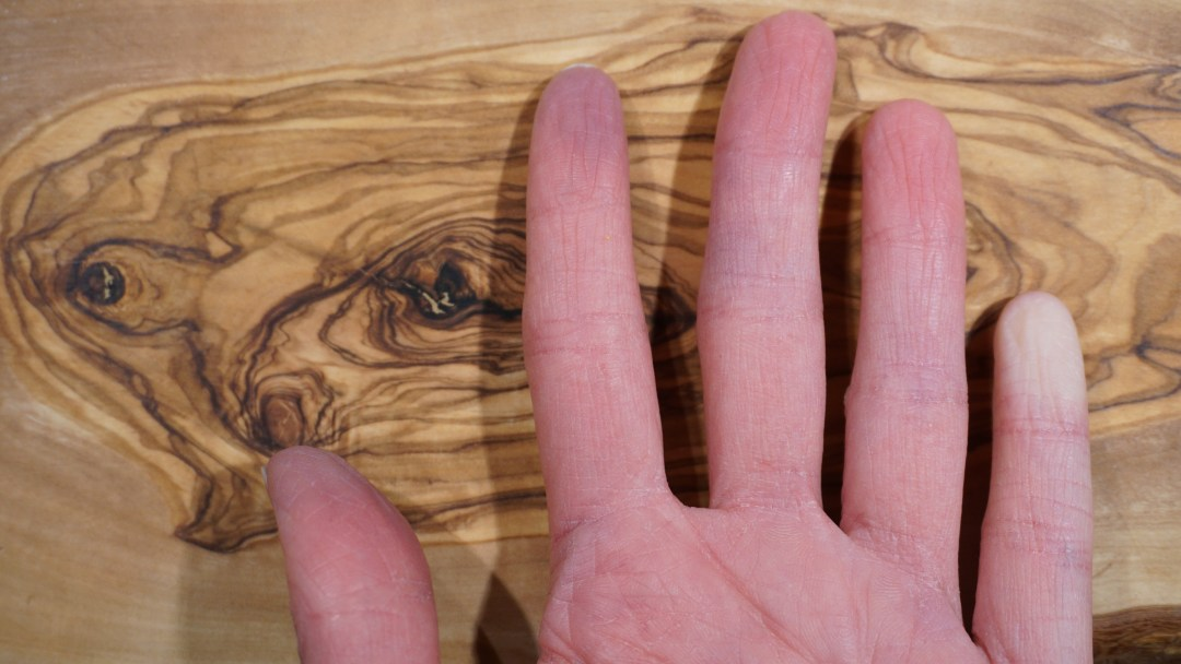 This is a nice example of Raynaud's phenomenon. Sometimes the finger can be white, like the pinky, and sometimes it can look dusky