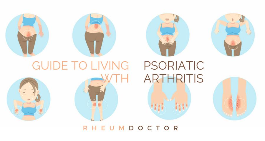 autoimmune psoriatic arthritis