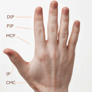 DIP, PIP, MCP, IP, and CMC joints