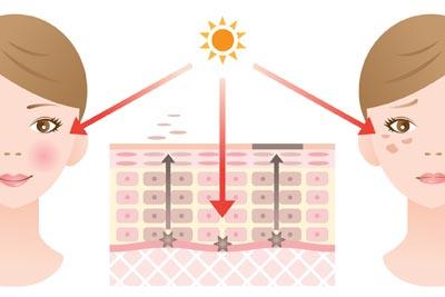 紫外線によるダメージの影響イラスト