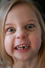 a young girl, missing one of her bottom teeth