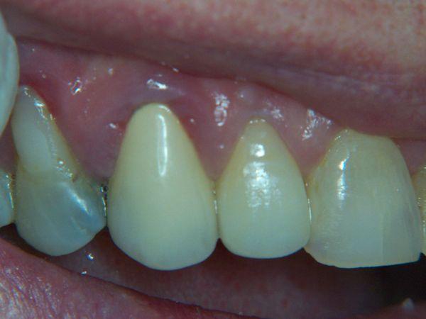 Gum Recession Around Crowns Bite Point