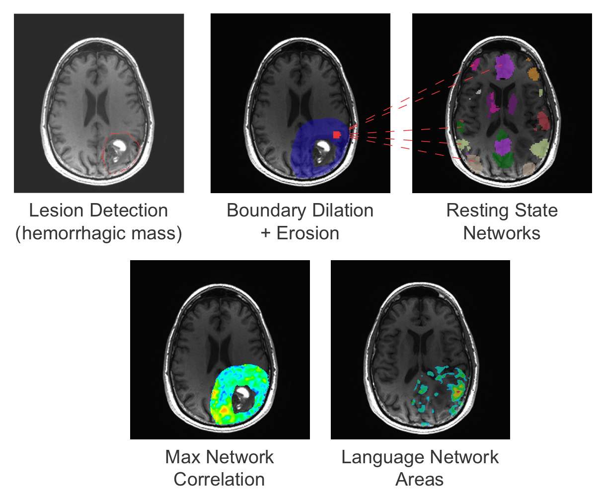 Functional Mapping of Intracranial Tumors