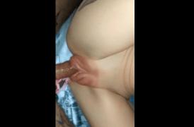 se succiona la vagina