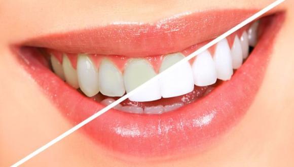 إليك كيفية الحصول على أسنان ناصعة البياض