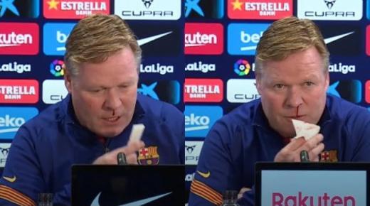 كومان ينزف دما من أنفه أثناء المؤتمر الصحفي قبل مباراة برشلونة ضد إشبيلية