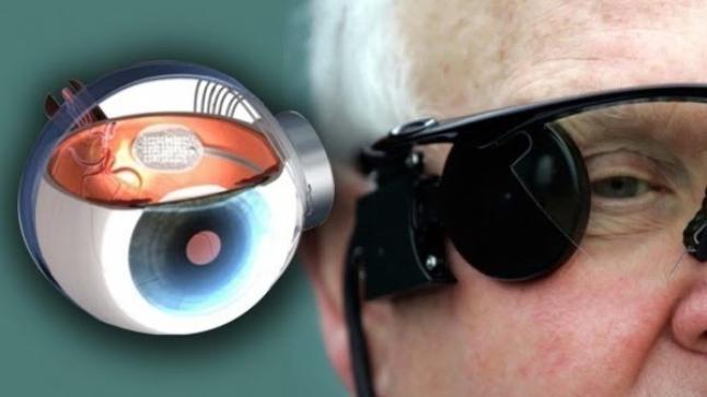 """""""العين الإلكترونية"""" فرصة جديدة للمصابين بالعمى"""