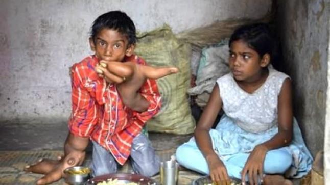 بالصور: شاهد الطفل الذي حير الأطباء والعلماء بحجم يديه العملاقتين !