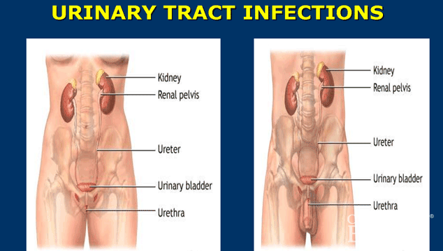 HOW TO NATURALLY CURE URINARY TRACT INFECTION | RIGHT DIET PLUS