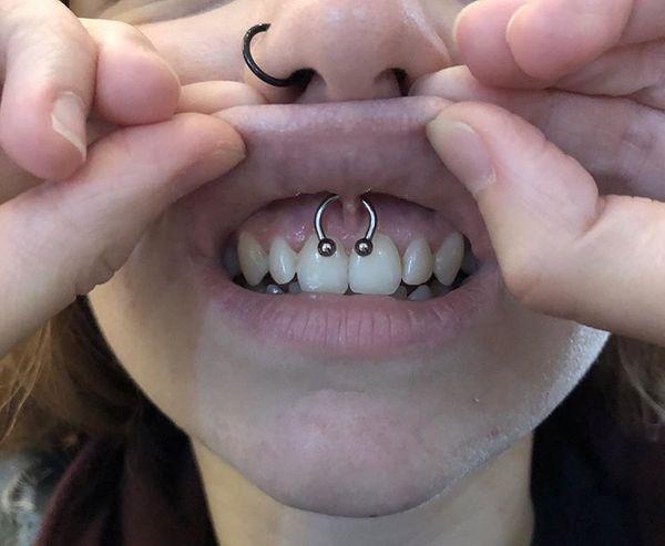 smiley piercing healing time