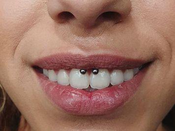 swollen smiley piercing