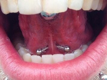 under tongue piercing cost