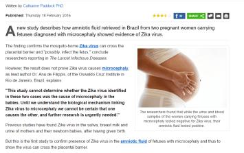 zika pregnancy photo 7