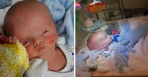 Baby boy born with severely swollen head due to rare condition is defying the odds five weeks after birth  after parents refuse abortion