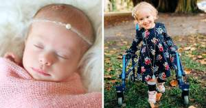 Girl, 3, with spina bifida defies odds by learning to walk after parents reject doctor's advice to have an abortion