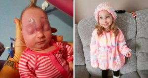Baby girl given just minutes to live now flourishing aged 3