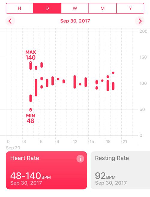 Apple Watchは心拍数が測れるが 血圧も測れれば最高の医療器具になる 2
