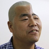 【中国】落下事故で頭が凹んだ男性、3Dプリンターで復元へ(画像あり)