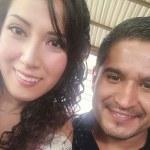 mejor rinoplastia en mexico