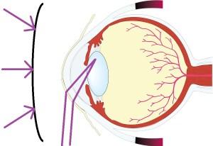 サングラスによる眼球保護