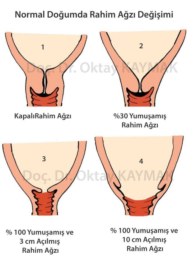 Normal-doğumda-rahim-ağzı-değişimi