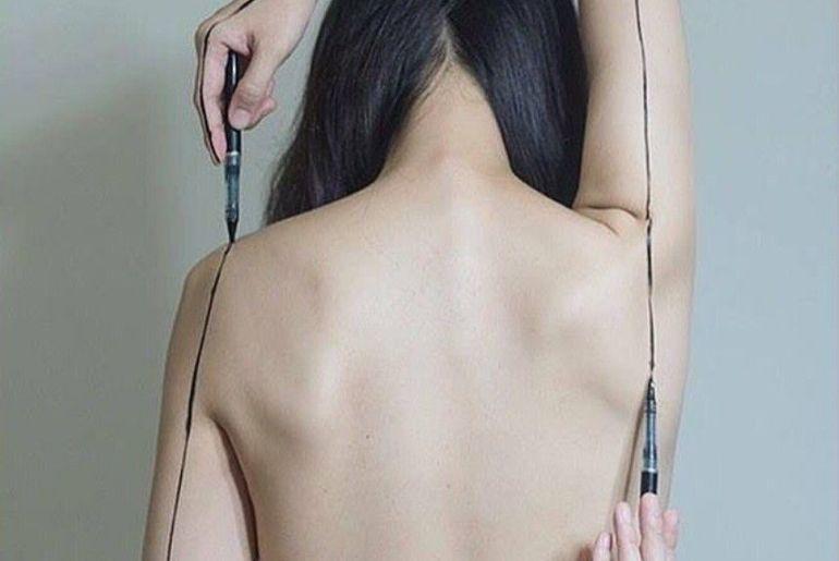 cicatriz em cirurgia plastica