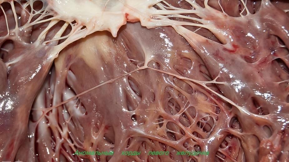 Что такое трабекула левого желудочка: причины, симптомы, лечение патологии. Малая аномалия сердца — трабекула левого желудочка: признаки и лечение