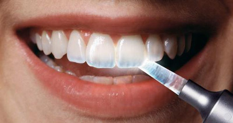 Kết quả hình ảnh cho Does the white toothpaste erode the enamel tooth