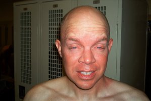 This officer shows the effects of the pepper spray one hour after bring used..