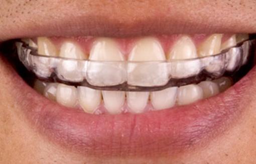 Dental Lab Bite Splints