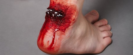 achilles_tendon_by_radness_madness-d36flrt