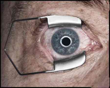 new_yorker_clockwork_orange_eye_5139-2ac8be9ba19e42e11a60da012e84a1d56343f5a5-s6-c30