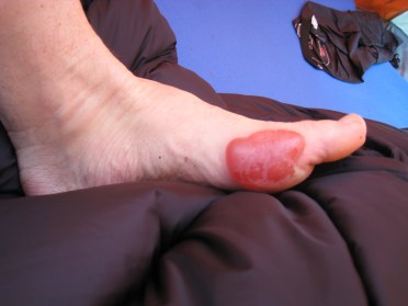 Did I mention the blisters?
