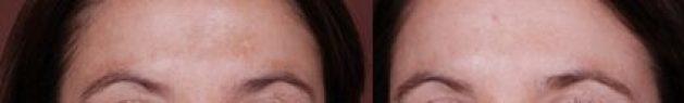 dermaplaning dallas facial treatment