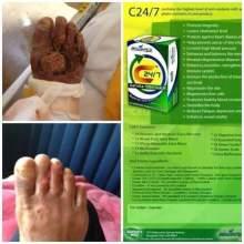FB_IMG_1452304142770
