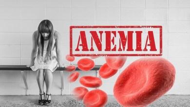 Photo of أعراض فقر الدم