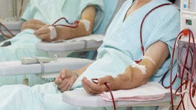 صورة اسباب الفشل الكبدي